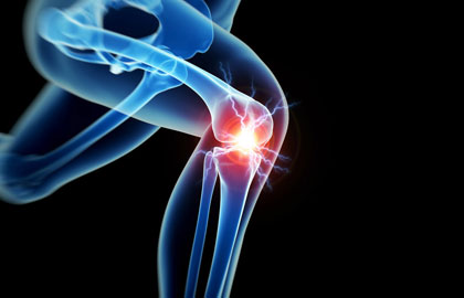 Orthopaedic Associates Zanesville Ohio Orthopaedic Medical Specialists